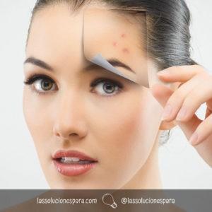 Como Cuidar La Cara Del Acné