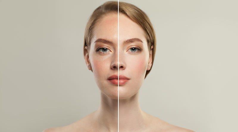Como Tratar Las Manchas De La Cara