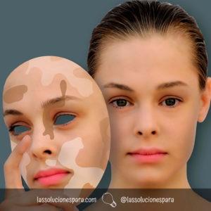 Tratar Las Manchas De La Cara