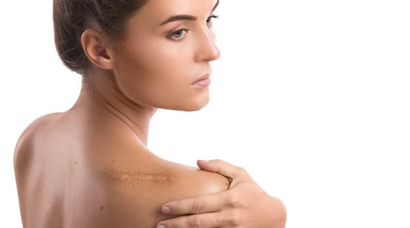 Eliminar Las Cicatrices De Forma Natural