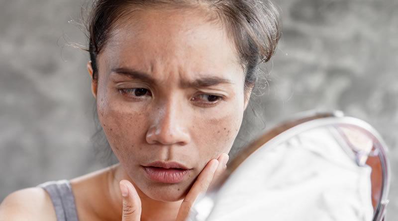 Tratamientos naturales para el melasma